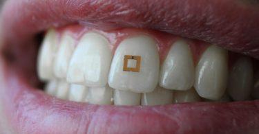 Un capteur de dent pour détecter ce que vous mangez
