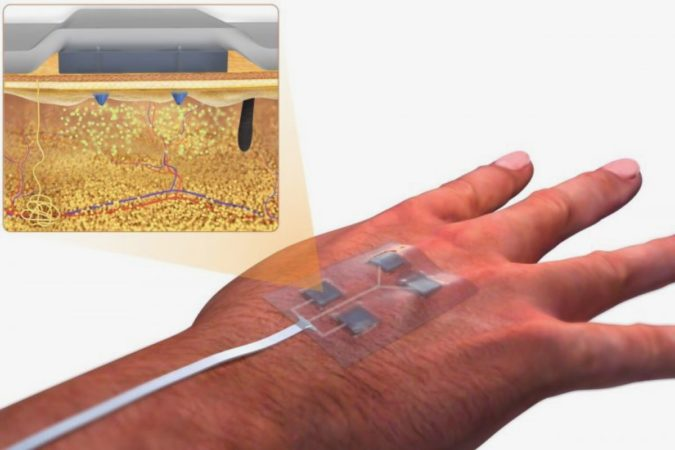 Un pansement télécommandé permet d'administrer des médicaments sans avoir à les retirer